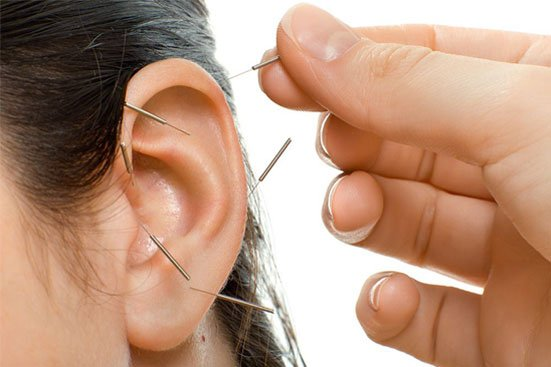 mkkim - ear acu