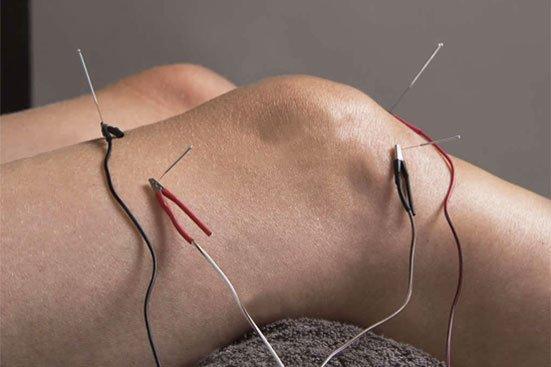mkkim - electro knee